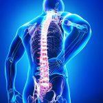 Die wichtigsten Auslöser für Ihre Rückenschmerzen